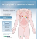 Welch Allyn EKG Hookup Wall Chart