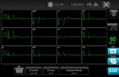 12-Lead ECG Preview